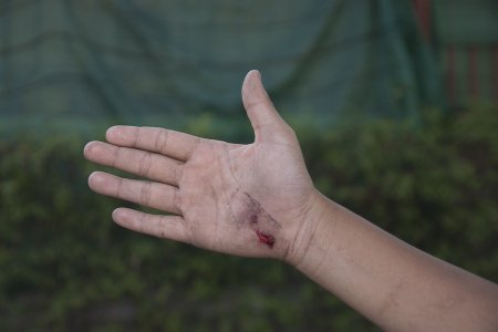 Injuries after a dog bite